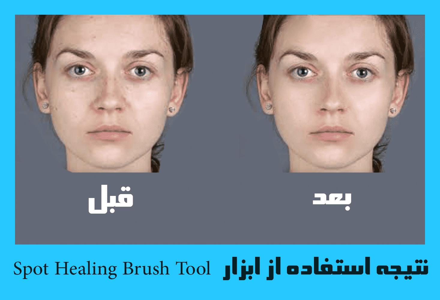 نتیجه استفاده از ابزار Spot Healing Brush Tool